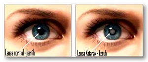 katarak mata