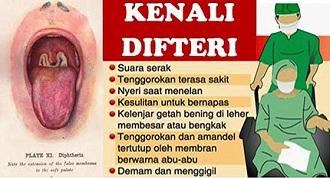 difteri ciri ciri